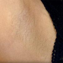 【高画質ワキフェチ動画】まさかの剃り残しのあるジョリワキでステージに立つ激カワキャンギャル