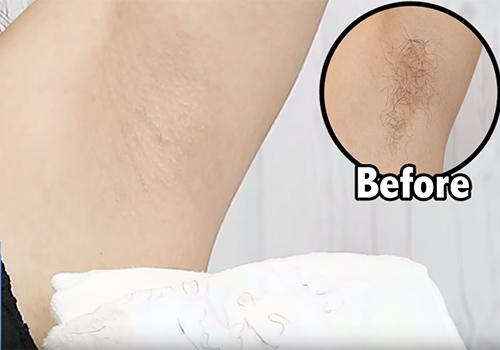 (高画質ワキマニアムービー)Youtubeで恥ずかしすぎるワキ毛を晒してしまう女子